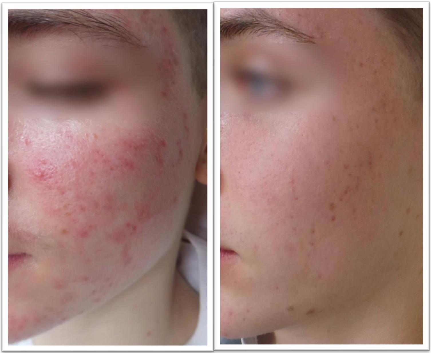 hur får man bort acne