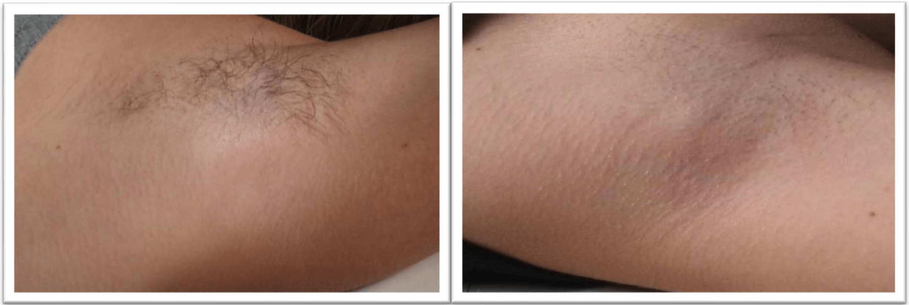 hårborttagning laser haninge