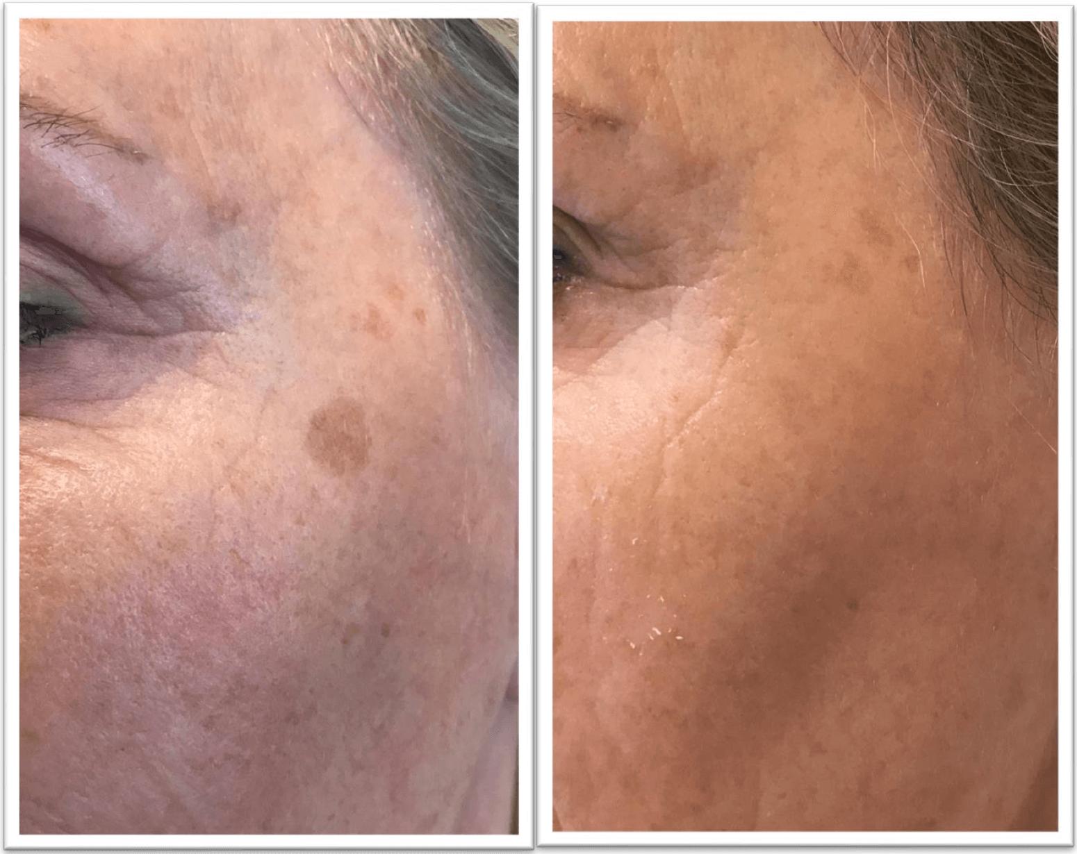 hur tar man bort pigmentfläckar i ansiktet