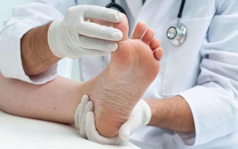 Medicin mot nagelsvamp